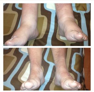 lymphatic foot