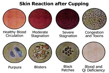 cupping skin reaction guilde